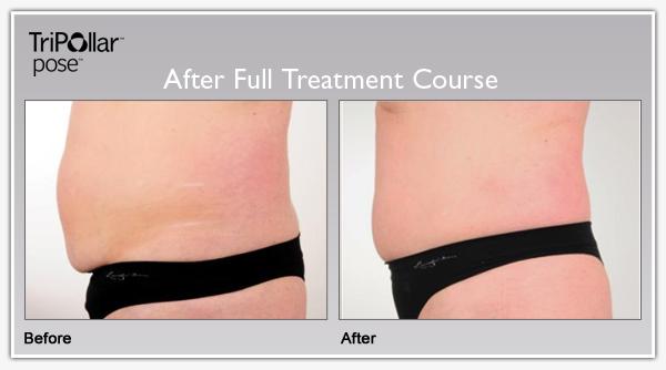 Tripollar Pose - Skin Tightening Benefits